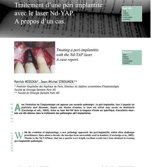 IMPLANTOLOGIE. Traitement d'une péri implantite avec le laser Nd-YAP
